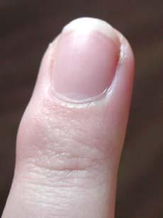 how to cut ingrown fingernails