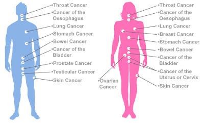 cara mengobati penyakit kanker secara alami