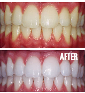 Tips, memutihkan gigi secara alami