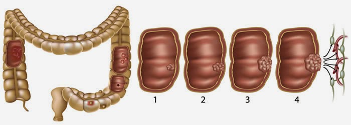 Cáncer de colon, causas, síntomas, prevencion