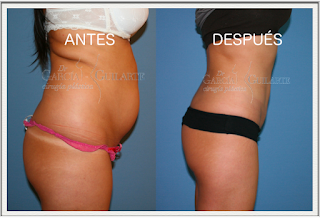 liposuccion_abdominoplastia_lipoescultura_madrid