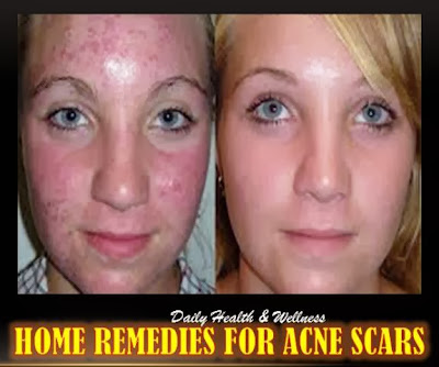 home remedies for acne redness