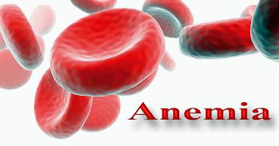 Laporan Pendahuluan Anemia