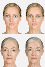 Wow! High Blood Sugar can Lead to Face Looks Old