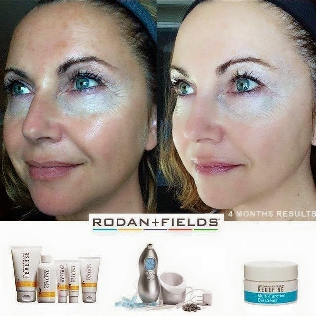 6 Skincare Solutions For Brides To Be Using Rodan Fields