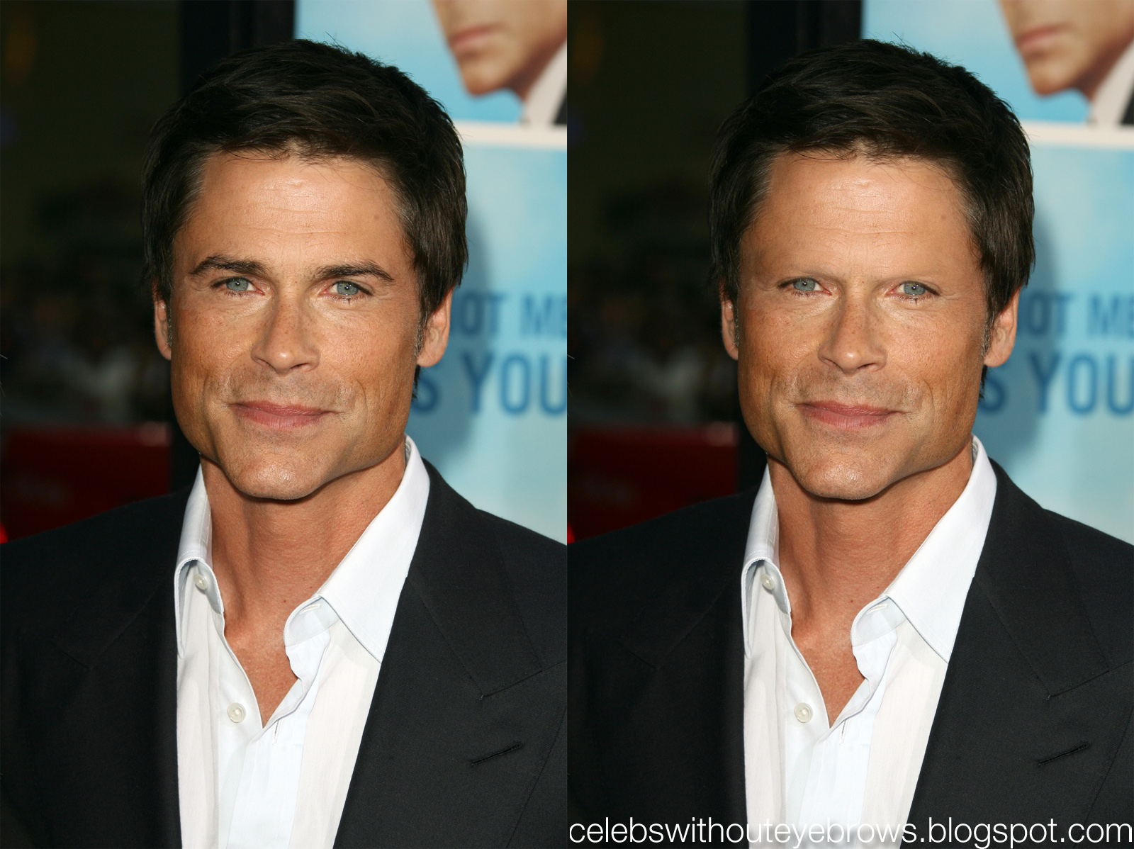 Celebs Without Eyebrows Rob Lowe