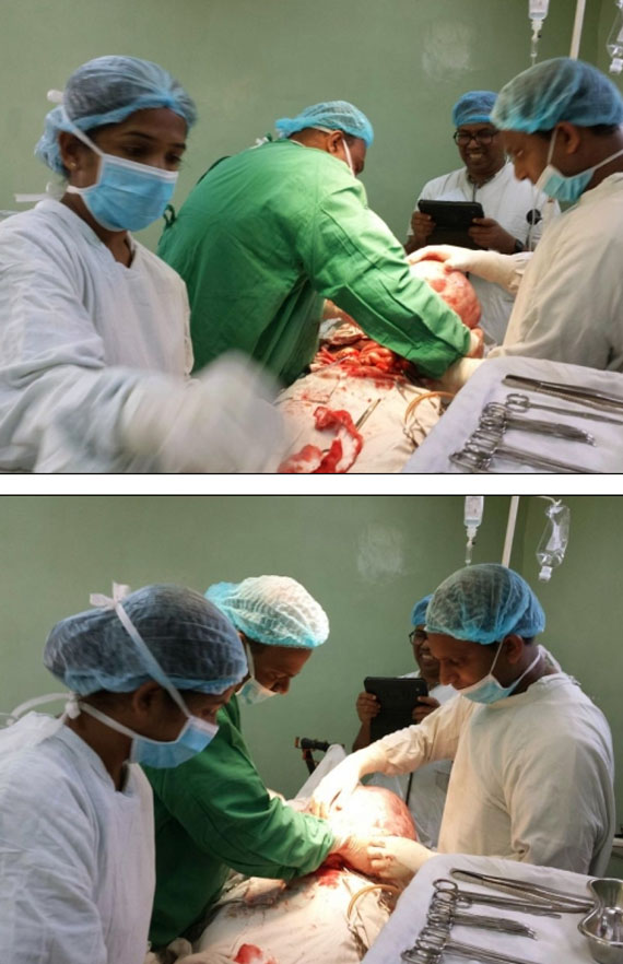 Giant 8kg tumour removed from woman's ovary in Dikoya