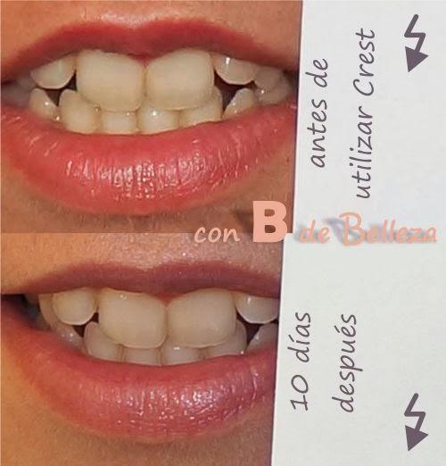 Resultado blanqueamiento dental