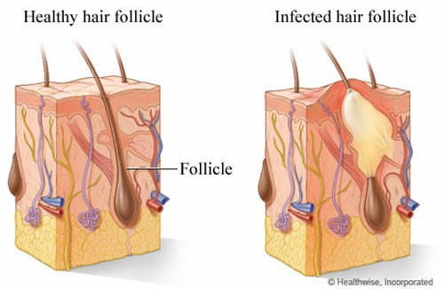 How many follicles should clomid produce