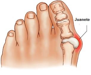 tratamiento-eliminar-juanetes