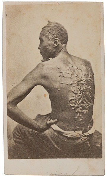 Us Slave The Whipping Scars On The Back Of The Fugitive