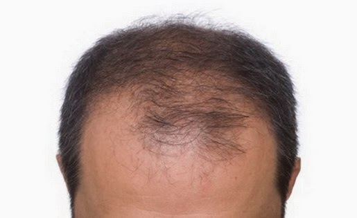 The Science Behind Hair Growth – Is it Really Possible to get it back?
