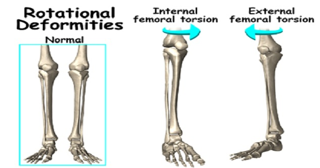 sitting possition and their efefct on your bones