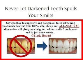No More Darkened Teeth.