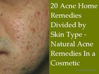 20 acne home remedies divided by skin type   natural acne