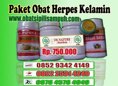 obat herpes kelamin, cara mengobati herpes kelamin, cara mengatasi herpes kelamin, cara mengobati herpes pada kemaluan, cara mengatasi herpes pada kemaluan