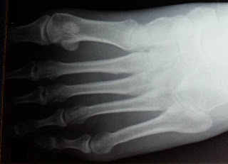 An x-ray of my metatarsals after a suspected stress fracture through running