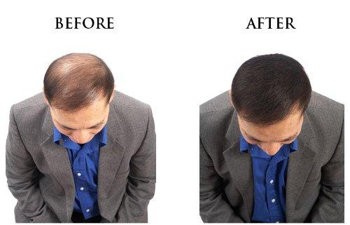 Solução instantânea para calvície e pouco volume de cabelo - Toppik