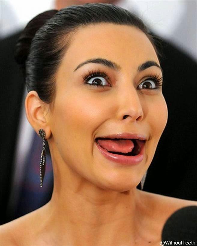 Famosos sin dientes Angelina Jolie