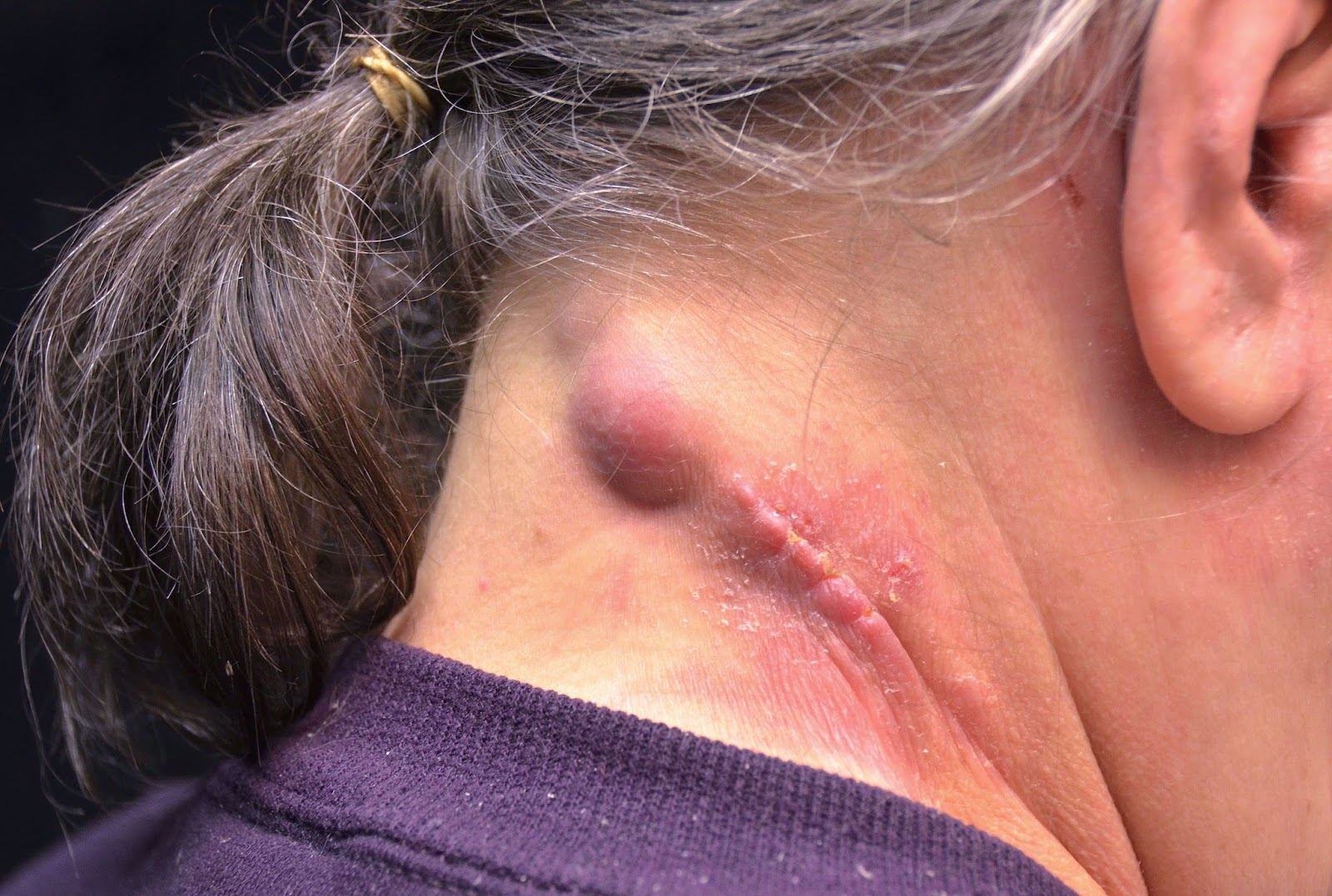 skin abscess pictures