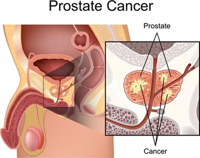 Prostate Cancer Causes, Symptoms, and Preventions
