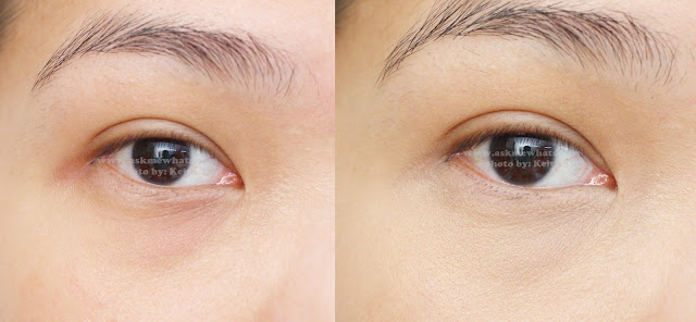 Before and after photo of using Etude House Surprise Stick Concealer