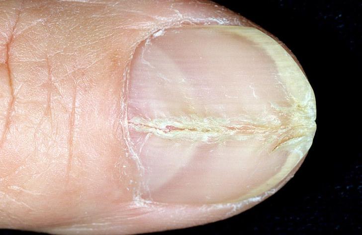 Что скапливается под ногтями на ногах
