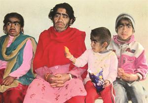 عائلة نيبالية تعاني من متلازمة الذئب