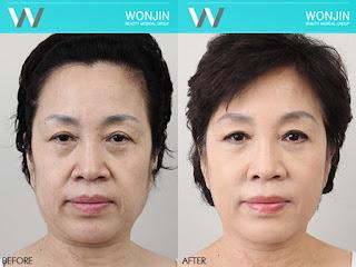 sebelum dan sesudah lifting di Wonjin-1