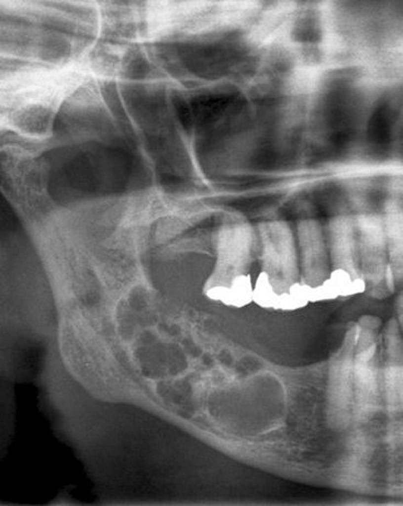 Mandibular adenomatoid odontogenic tumor: Radiographic and ...
