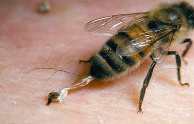 8 Cara Efektif Mengobati Sengatan Lebah (Tawon)