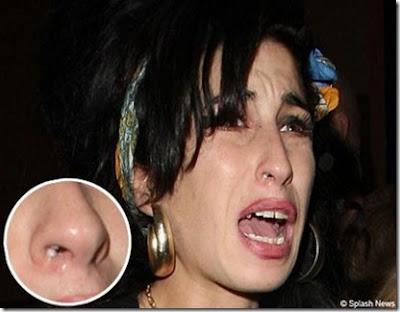 Amy Winehouse Body
