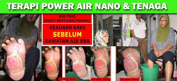 TERAPI AIR NANO & TENAGA + GARAM BULOH