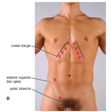 Pictures Groin Lump - Doctor insights on HealthTap