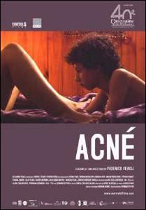 Acné (2009) DVDRip Latino