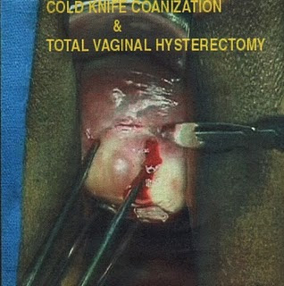 Total Vaginal Hysterectomy