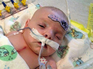 Baby Girl Get's Life Saving Heart Transplant