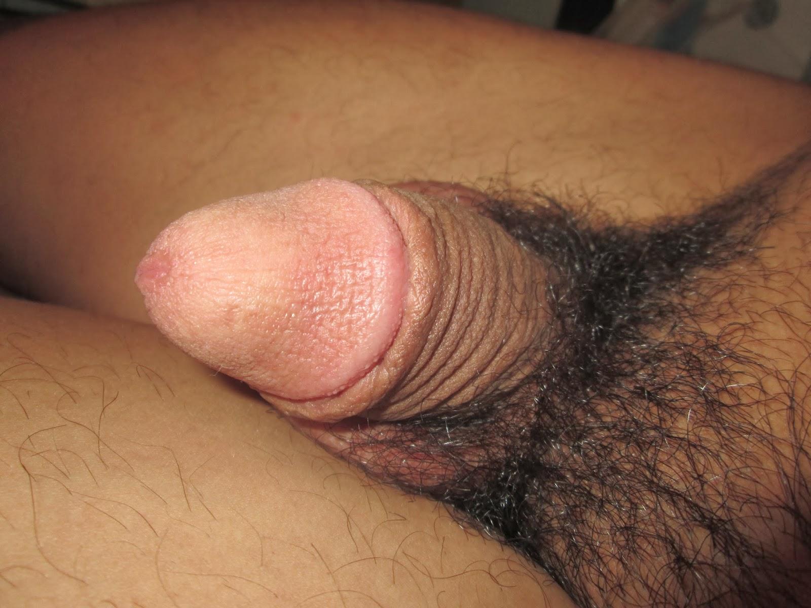 Circumcision - Sensitivity, Sensation and Sexual Function