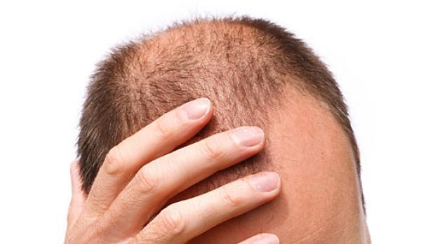 Tratamento contra a Alopecia
