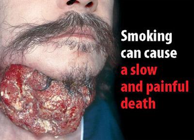 Adaptol como a dejar fumar