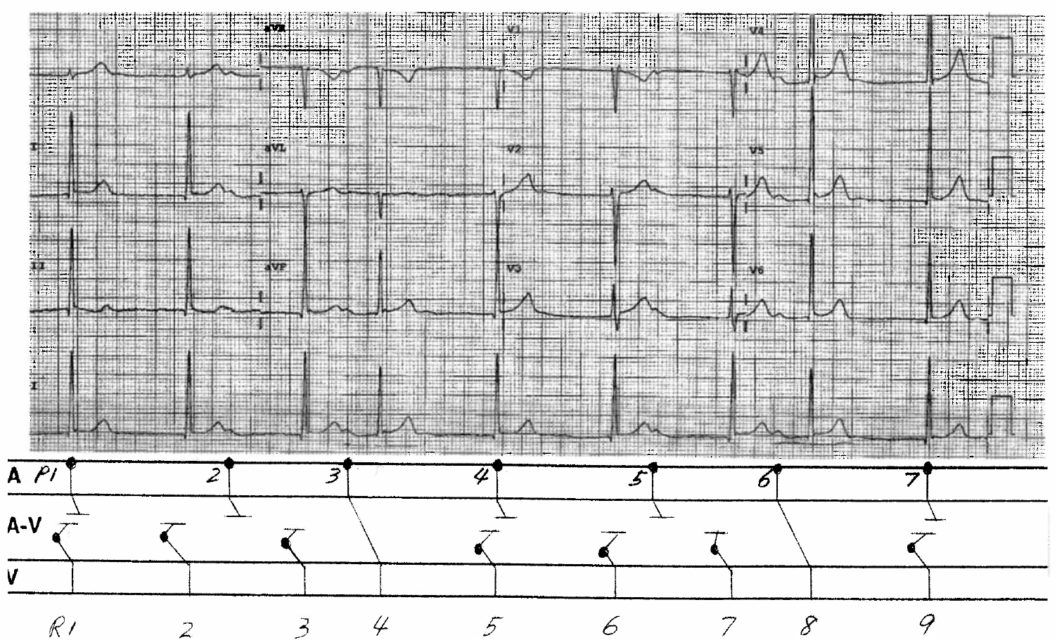 Dr smiths ecg blog a mystery rhythm explained by k wangs the primary problem is irregular sinus bradycardia sinus node dysfunction with junctional escape beats r1 2 3 5 6 7and 9 which occur with ccuart Gallery
