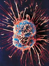 Τα πραγματικά αίτια του καρκίνου
