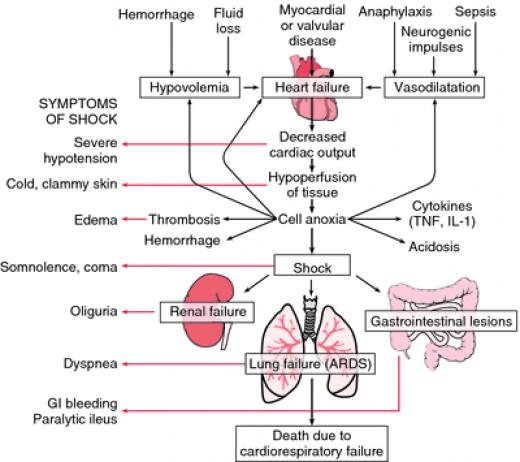 Development of Cardiac Shock