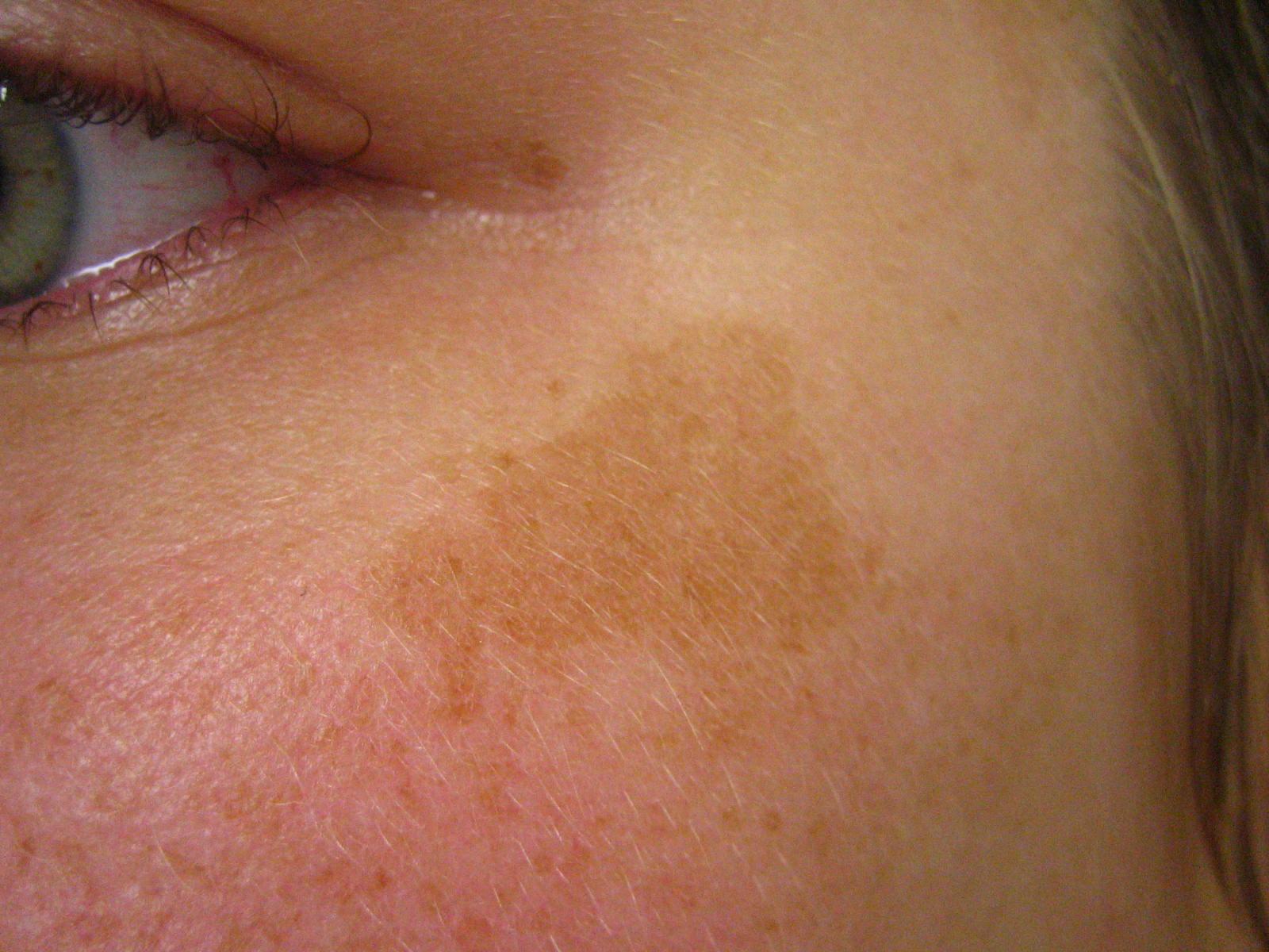 Die Sonnenschutzmittel gegen die Pigmentflecke