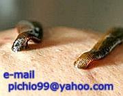 Rassegne di operazioni di varicosity delle estremità più basse