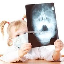 sinusitis kronis pada anak