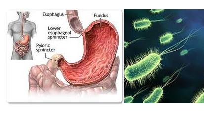 Cara Efektif Mencegah Penyakit Tipes