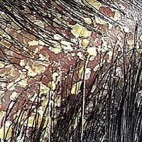 Harvest Hair Growth Seborrheaic Dermatitis How You Can