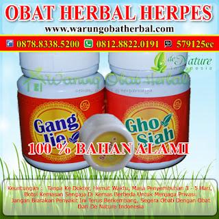 Obat Herpes Ampuh (3-5 Hari Sembuh)