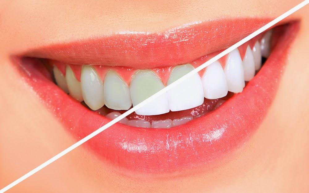 Teeth Whitening folk remedies